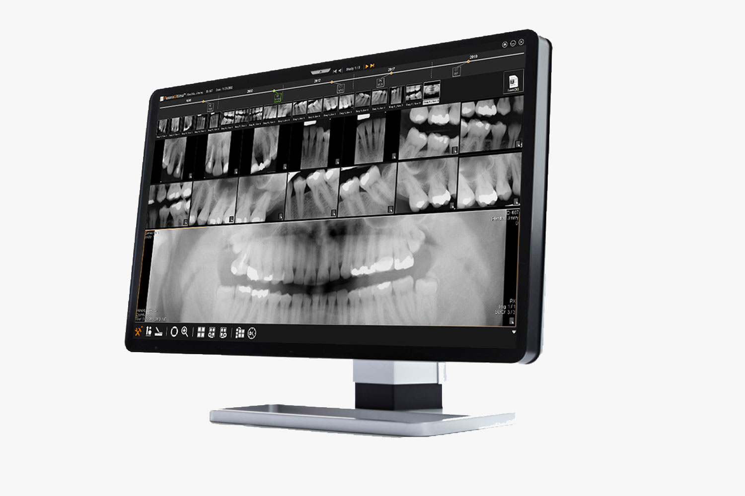 Dental Pacs FMX templates